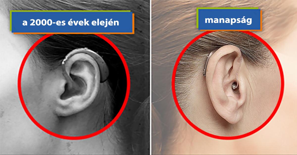Hozzánk közel álló halláscsökkenése
