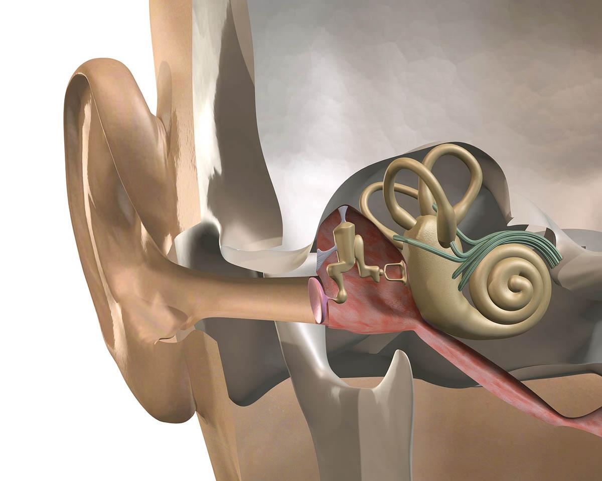 Dióhéjban az idegi halláskárosodásról