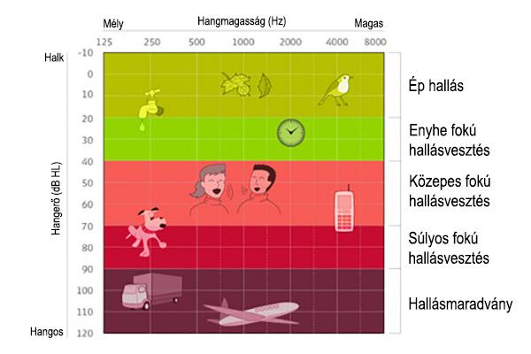 Útikalauz, amivel végre könnyebbé válik az audiogram értelmezése!